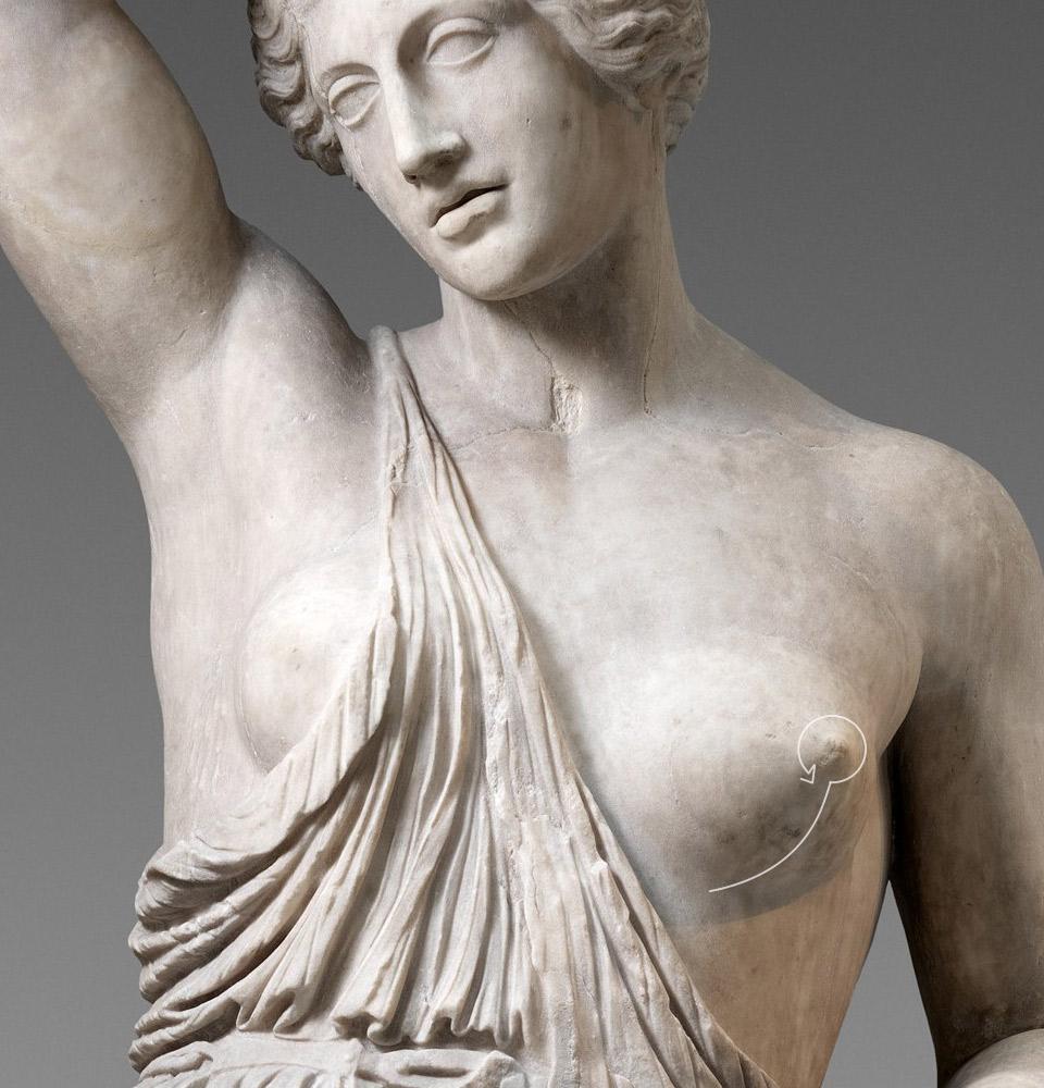 Breast Lift03 1