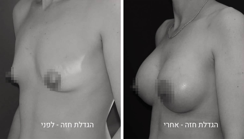 הגדלת חזה לפני תמונות גיל נרדיני