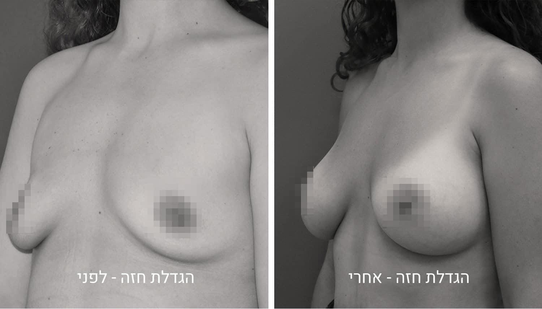 תמונות להגדלת חזה לפני ואחרי