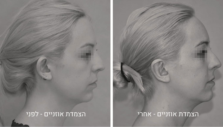 הצמדת אוזניים תמונות לפני ואחרי