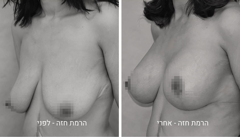 תמונות לפני ואחרי ניתוח הרמת חזה