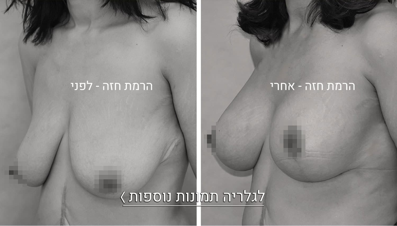 הרמת חזה תמונות לפני ואחרי 2 2
