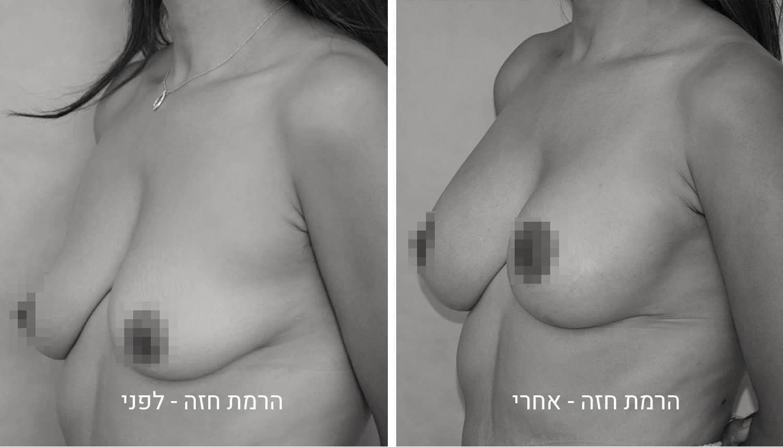 תמונות הרמת חזה לפני ואחרי