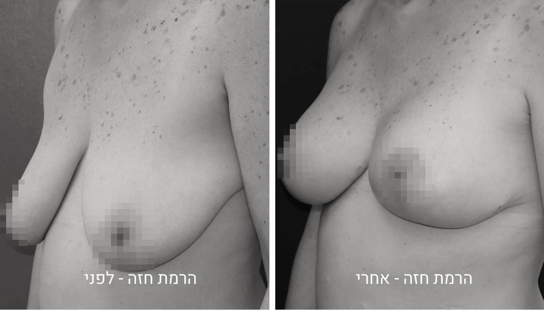 תמונות ניתוח הרמת חזה לפני ואחרי
