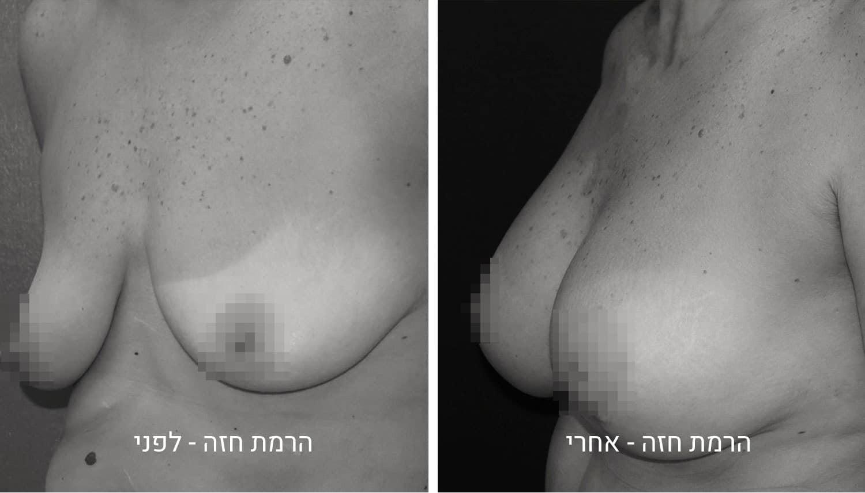 תמונות לפני ואחרי להרמת חזה גיל נרדיני