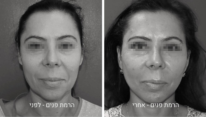 הרמת פנים תמונות לפני ואחרי