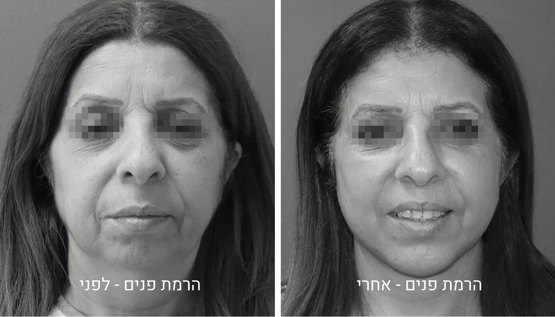 הרמת פנים תמונות לפני ואחרי גיל נרדיני