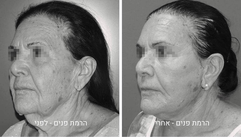 ניתוח הרמת פנים תמונות לפני ואחרי גיל נרדיני