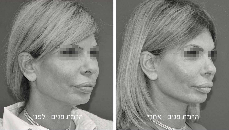 ניתוח הרמת פנים תמונות לפני ואחרי
