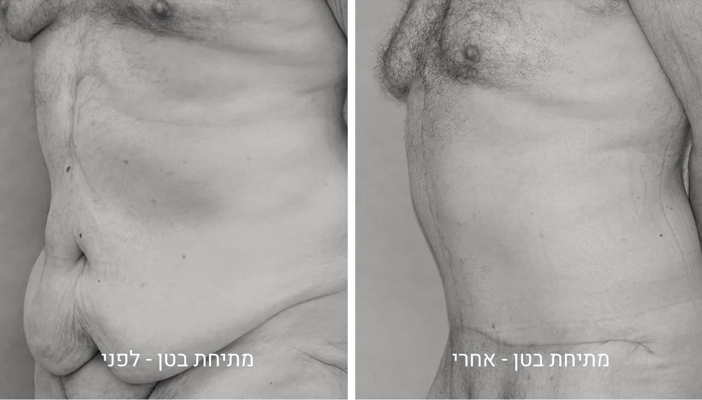 מתיחת בטן תמונות לפני ואחרי