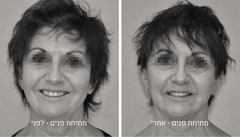 ניתוח מתיחת פנים תמונות לפני ואחרי