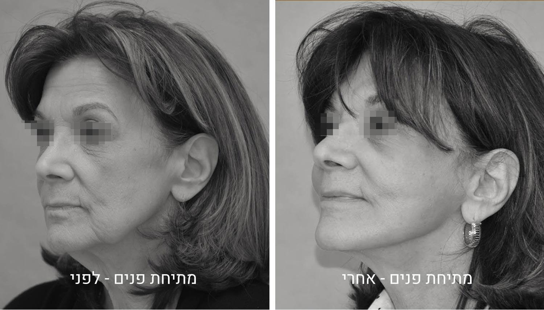 ניתוח מתיחת פנים תמונות לפני ואחרי גיל נרדיני