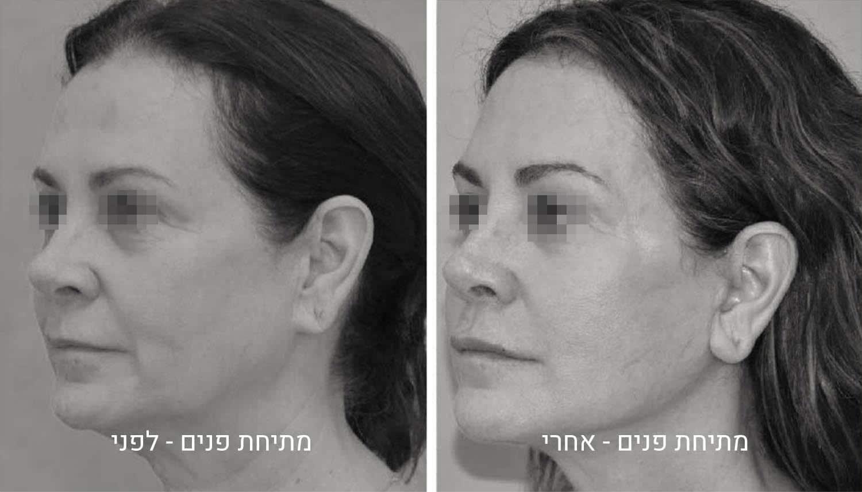 מתיחת פנים תמונות לפני ואחרי