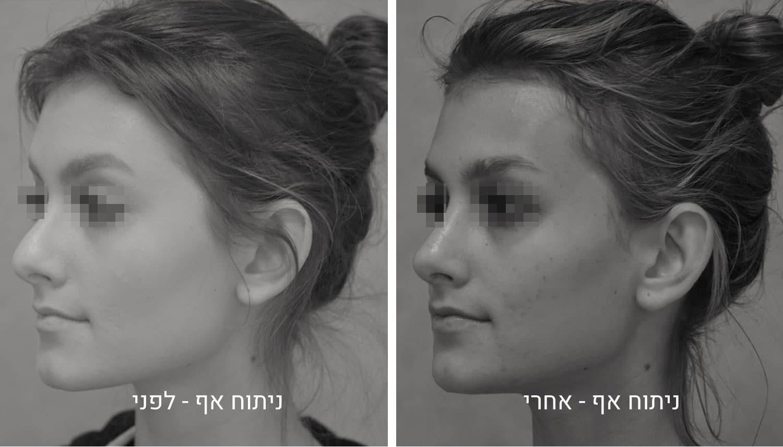 תמונות ניתוח אף לפני ואחרי