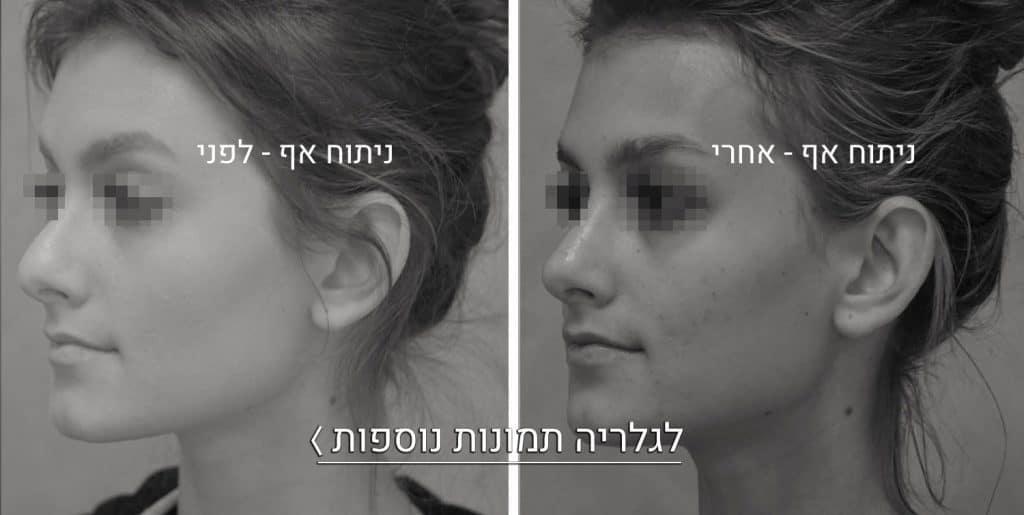 ניתוח אף תמונות לפני ואחרי 2 2