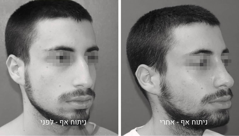 תמונות ניתוח אף לפני ואחרי גיל נרדיני