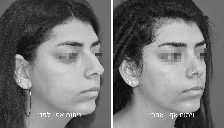 ניתוח אף תמונות לפני ואחרי גיל נרדיני