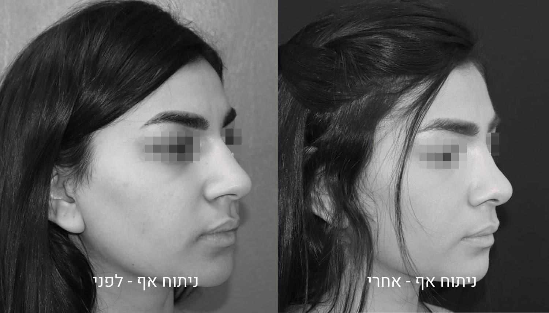 גיל נרדיני – ניתוח אף תמונות לפני ואחרי