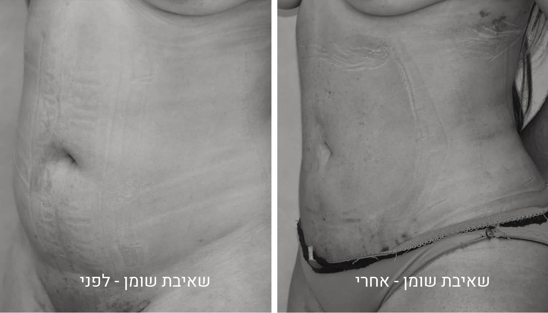 תמונות שאיבת שומן לפני ואחרי