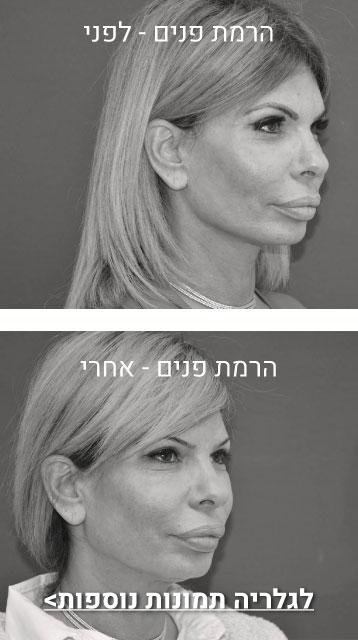 הרמת פנים תמונות לפני ואחרח מובייל